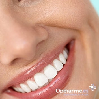 Blanqueamiento dental Domiciliario en Alicante