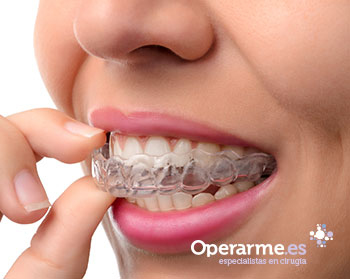Tratamiento de Ortodoncia Invisalign Comprehensive (ambas arcadas) en Madrid